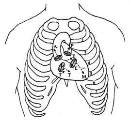 心脏五大听诊区位置图解