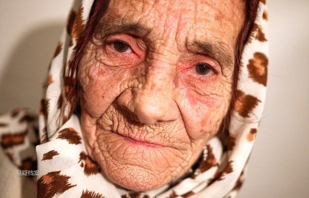80岁老人用舌头帮人去除眼中异物,奇特方法后继无人 - 真光 - 真光 的博客